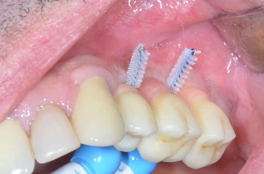 No vertical augmentation. An over-long crown (here with red esthetics) is trouble-free as to function. It is important for the superstructure to enable good dental hygiene.